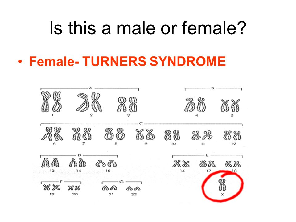 Is this a male or female Female- TURNERS SYNDROME