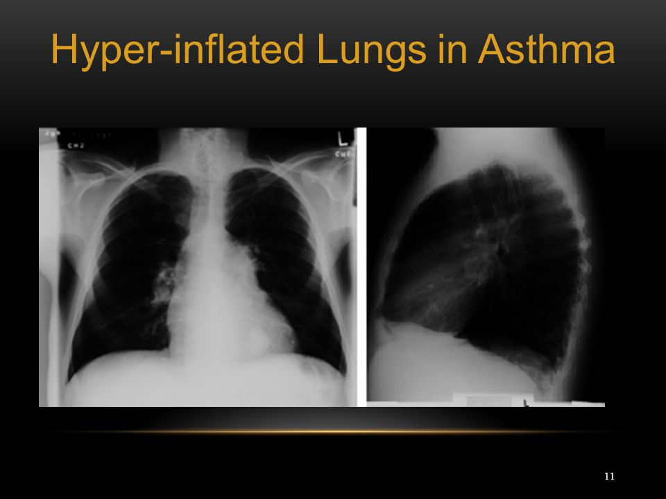 Hyper-inflated Lungs in Asthma
