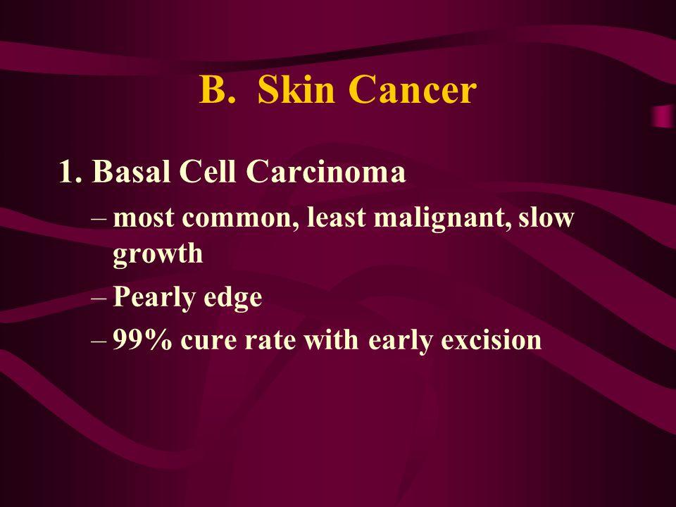 B. Skin Cancer 1. Basal Cell Carcinoma
