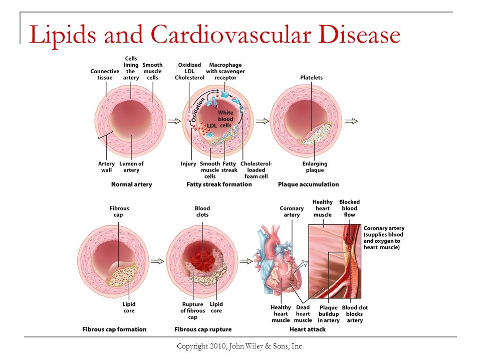 Lipids and Cardiovascular Disease