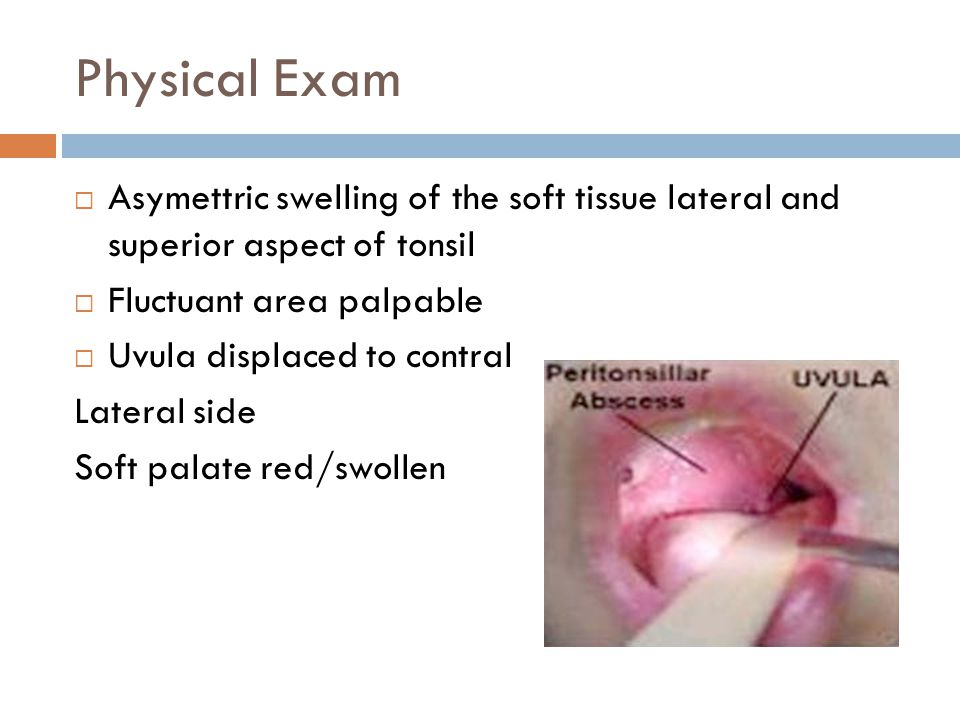 Physical Exam Asymettric swelling of the soft tissue lateral and superior aspect of tonsil. Fluctuant area palpable.