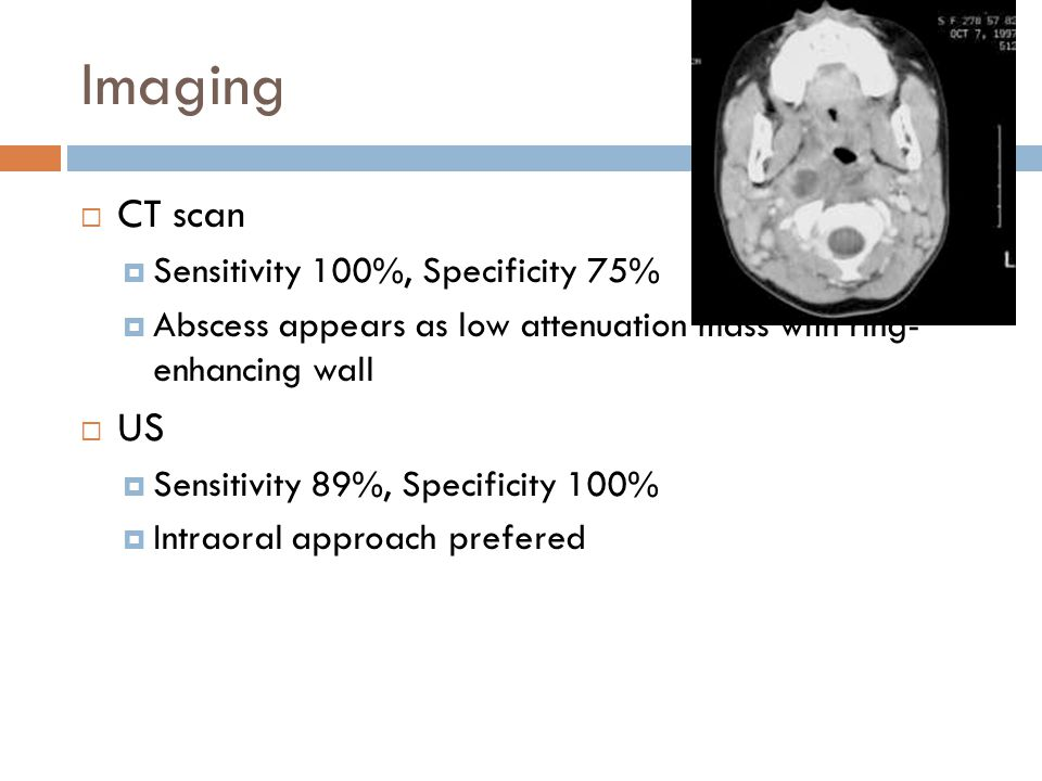 Imaging CT scan US Sensitivity 100%, Specificity 75%