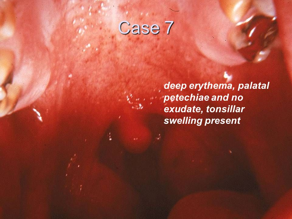 Case 7 deep erythema, palatal petechiae and no exudate, tonsillar swelling present