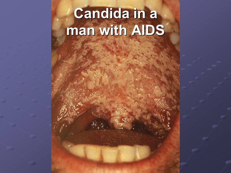 Candida in a man with AIDS