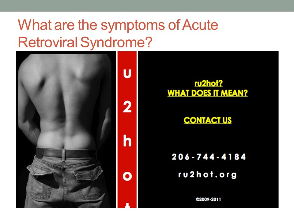 What are the symptoms of Acute Retroviral Syndrome