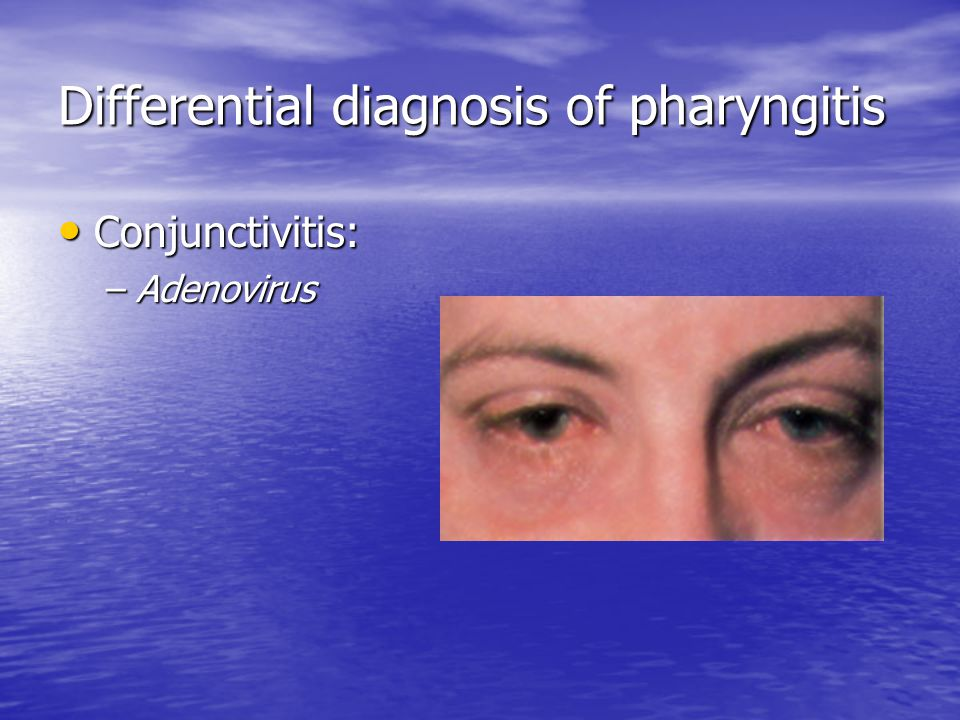 Differential diagnosis of pharyngitis