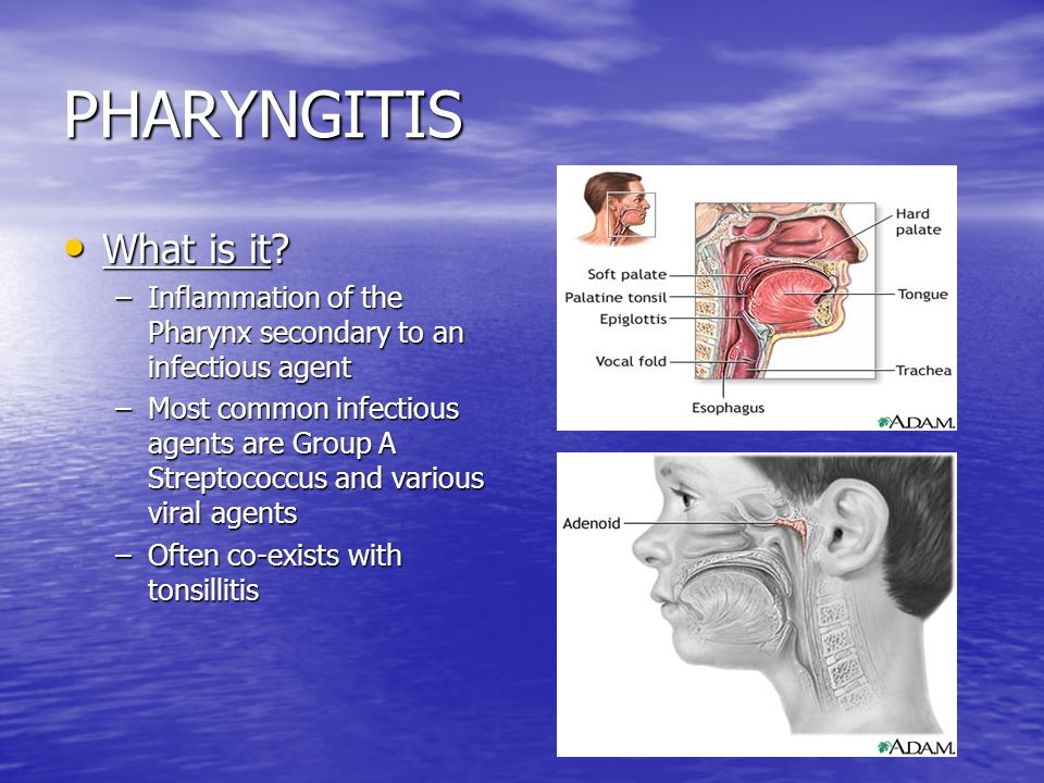 PHARYNGITIS What is it Inflammation of the Pharynx secondary to an infectious agent.