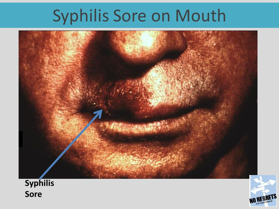 Syphilis Sore on Mouth Syphilis Sore