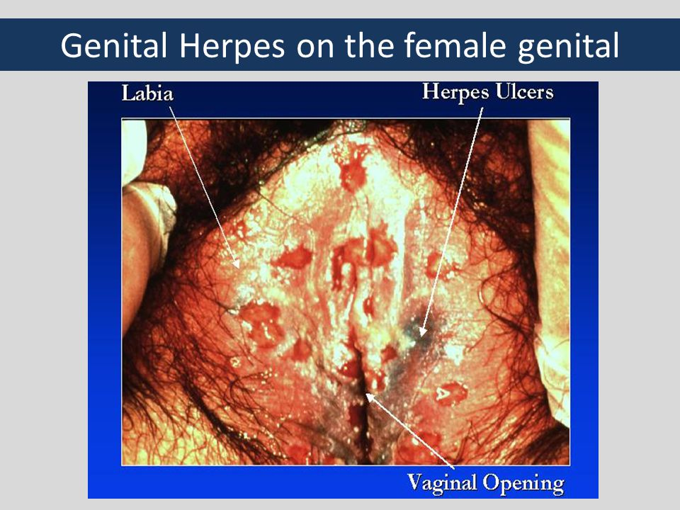 Genital Herpes on the female genital