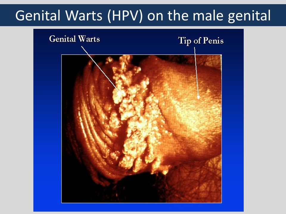 Genital Warts (HPV) on the male genital