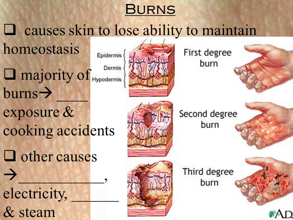 causes skin to lose ability to maintain homeostasis majority of