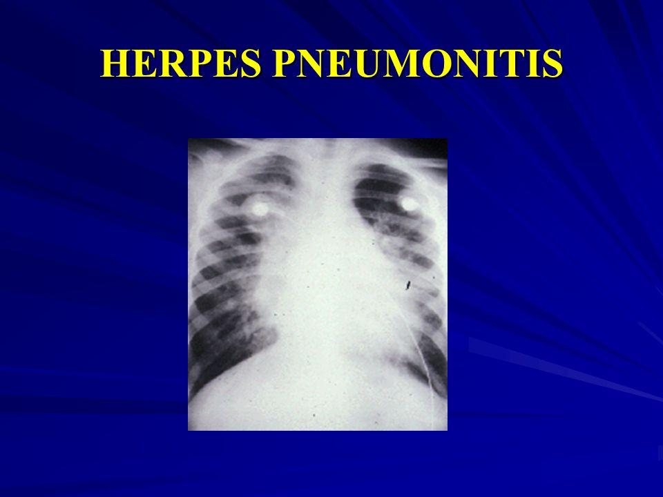 HERPES PNEUMONITIS