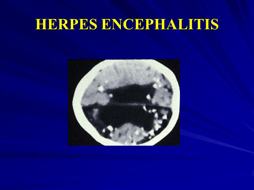 HERPES ENCEPHALITIS