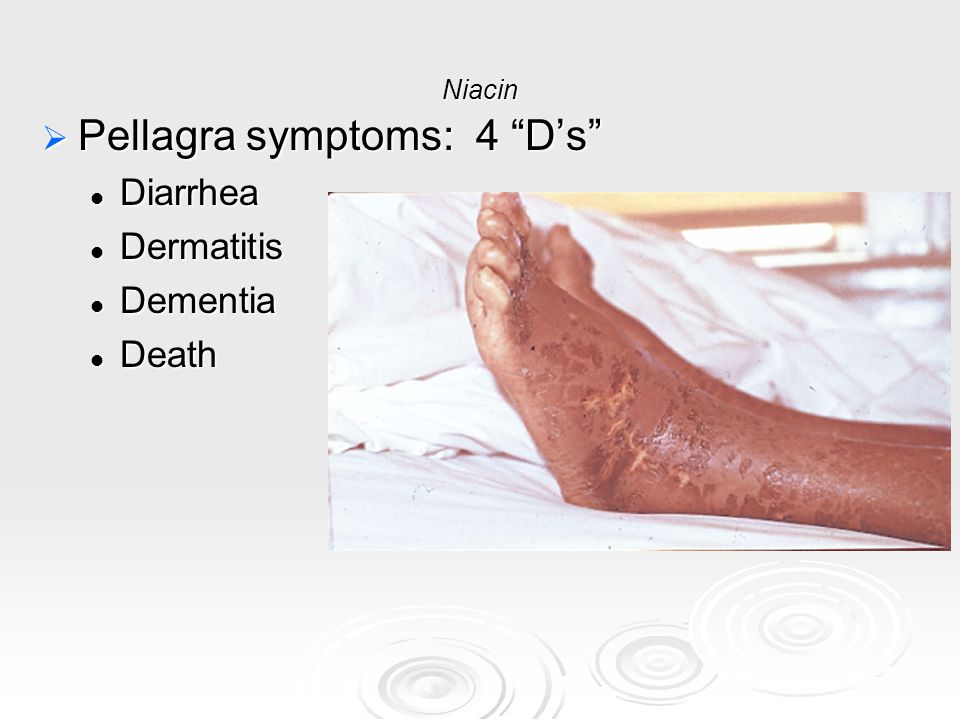 Pellagra symptoms: 4 D's