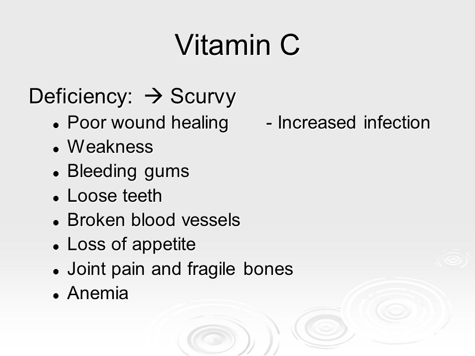 Vitamin C Deficiency:  Scurvy