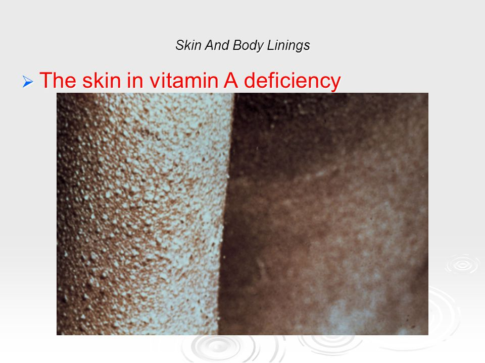 The skin in vitamin A deficiency