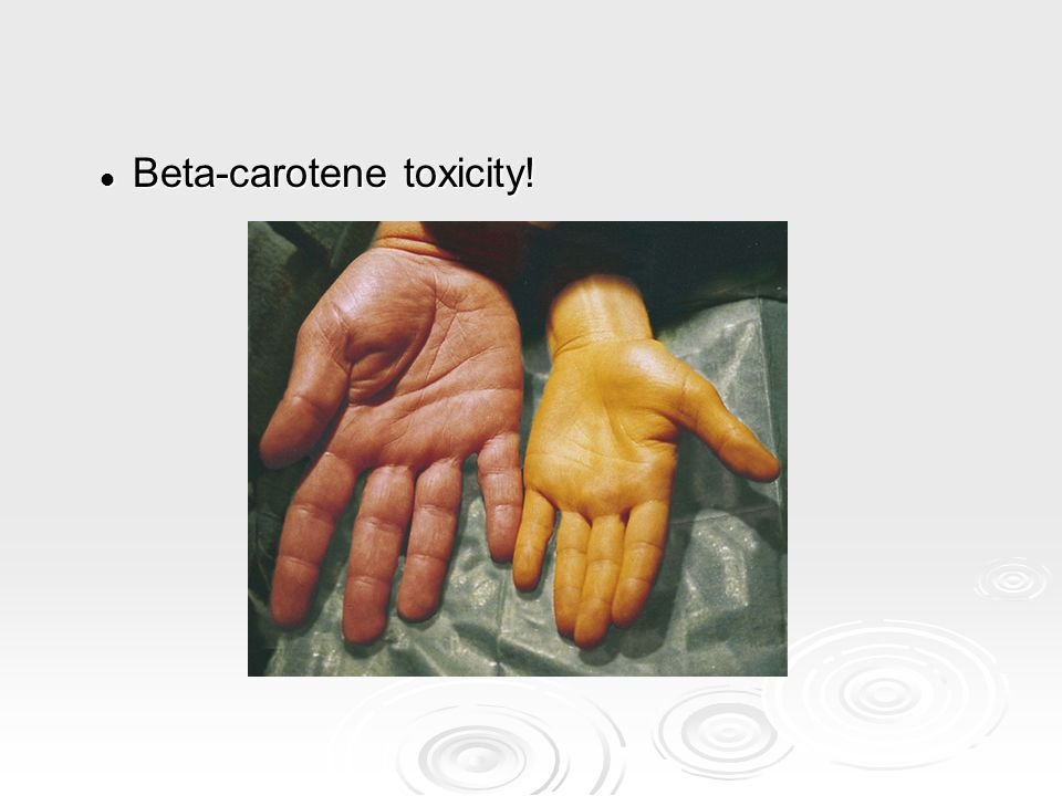 Beta-carotene toxicity!