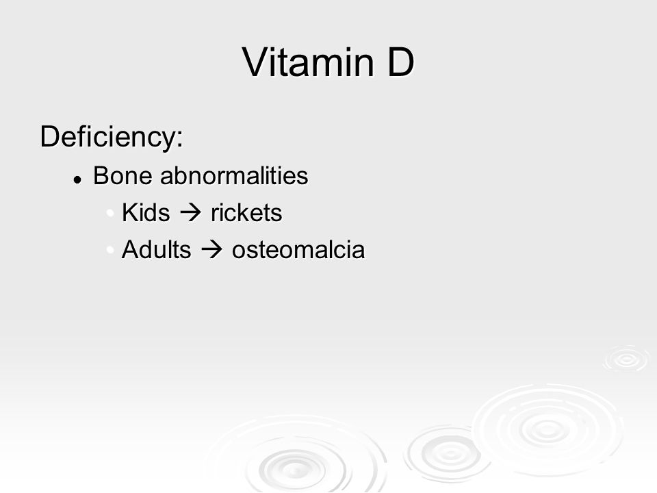 Vitamin D Deficiency: Bone abnormalities Kids  rickets