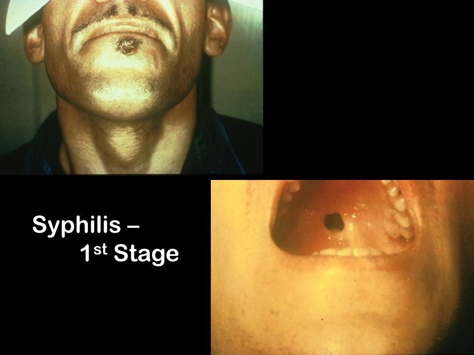 Syphilis – 1st Stage