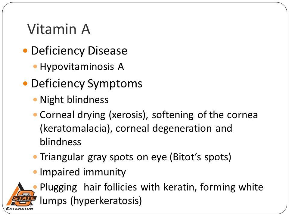 Vitamin A Deficiency Disease Deficiency Symptoms Hypovitaminosis A