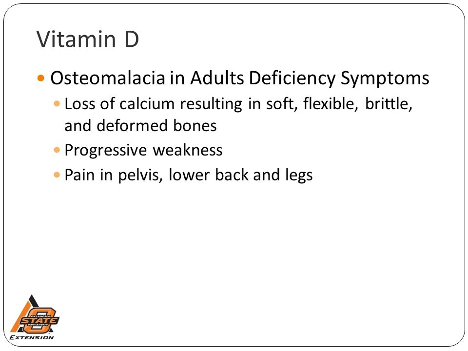 Vitamin D Osteomalacia in Adults Deficiency Symptoms