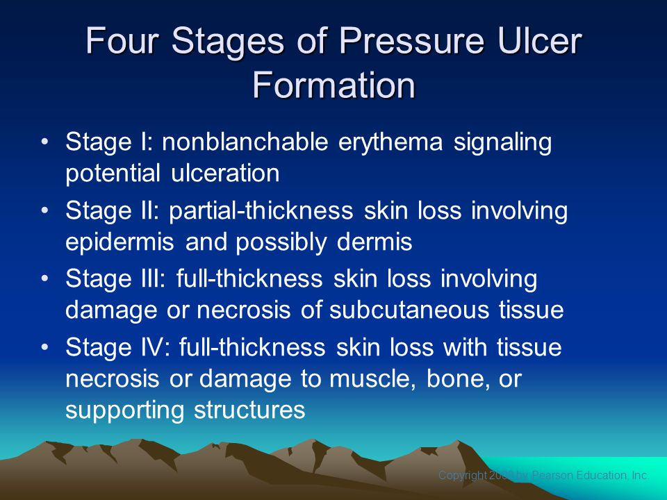 Four Stages of Pressure Ulcer Formation
