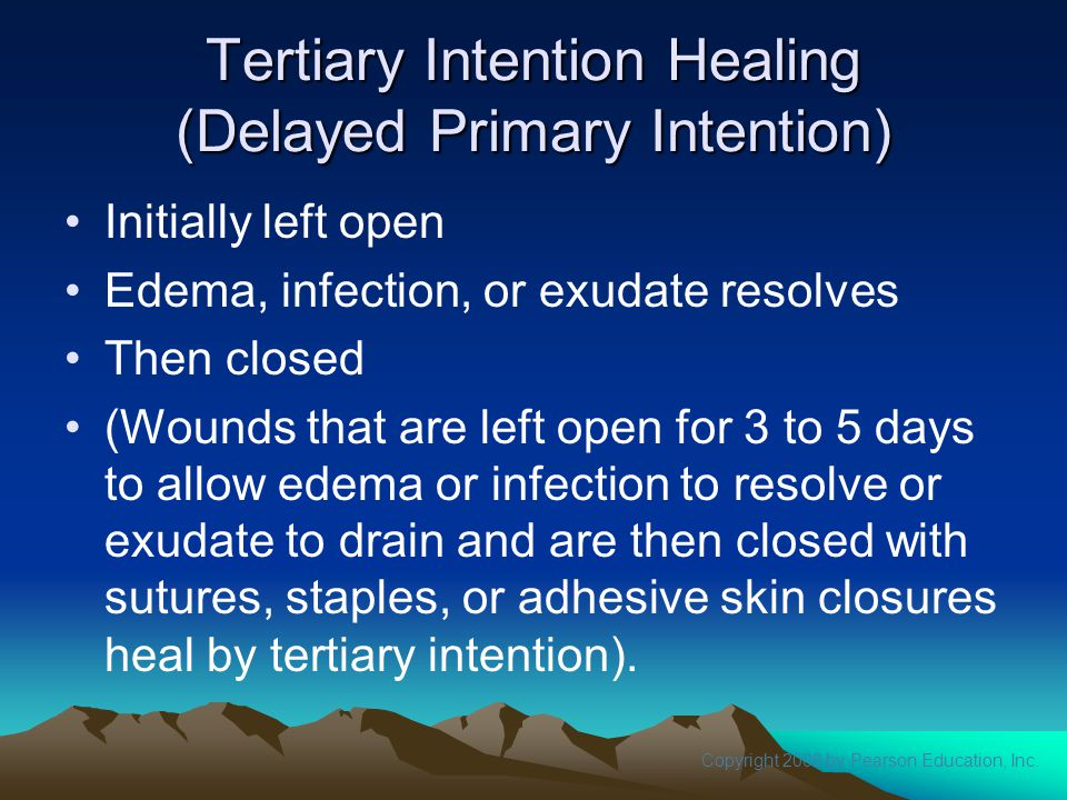 Tertiary Intention Healing (Delayed Primary Intention)