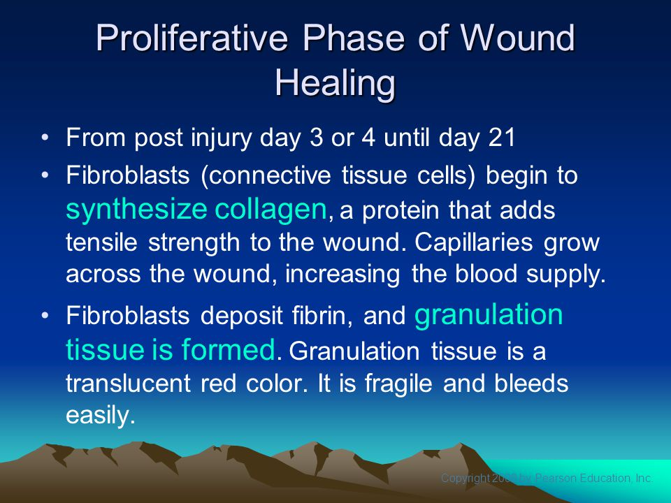 Proliferative Phase of Wound Healing
