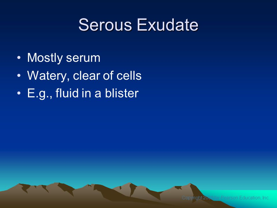 Serous Exudate Mostly serum Watery, clear of cells