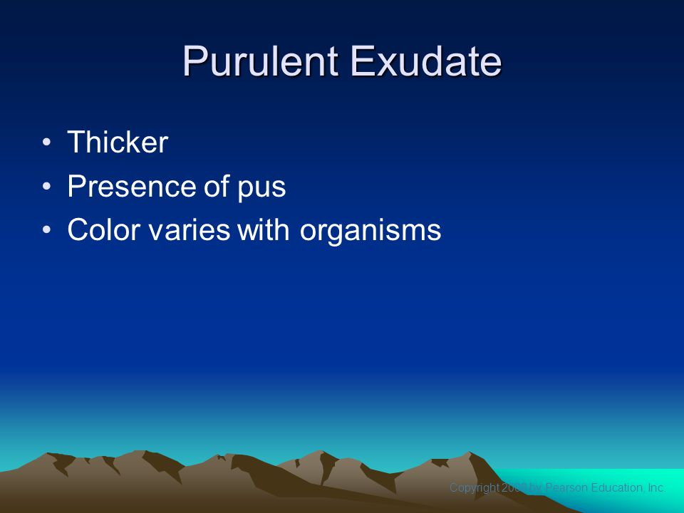Purulent Exudate Thicker Presence of pus Color varies with organisms
