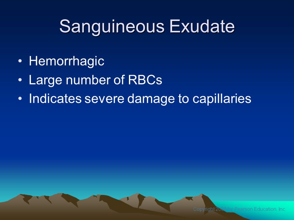 Sanguineous Exudate Hemorrhagic Large number of RBCs