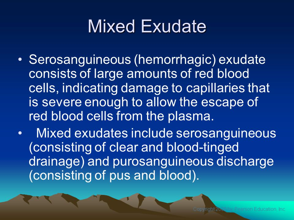Mixed Exudate