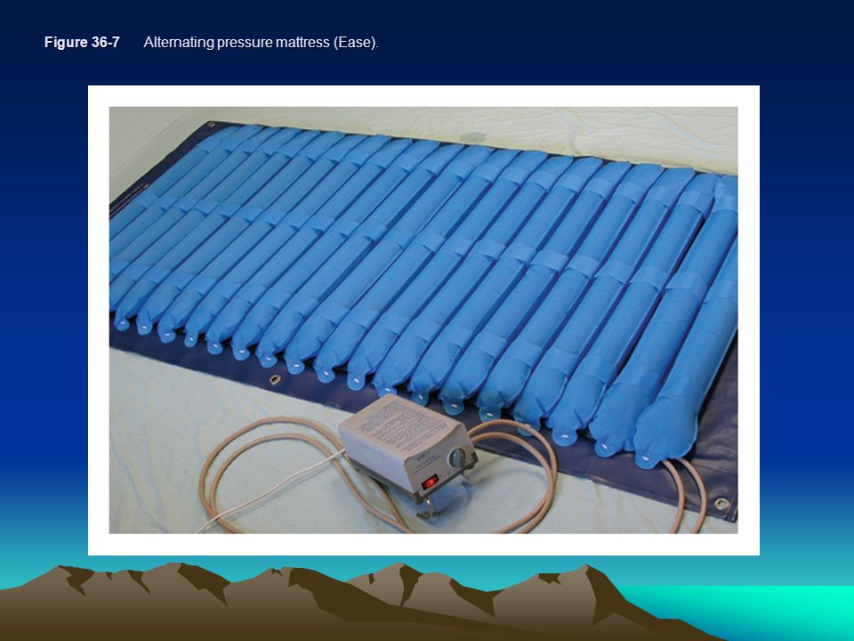 Figure 36-7 Alternating pressure mattress (Ease).