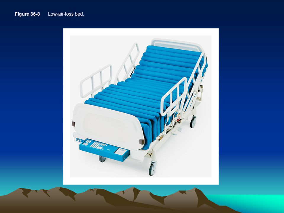 Figure 36-8 Low-air-loss bed.