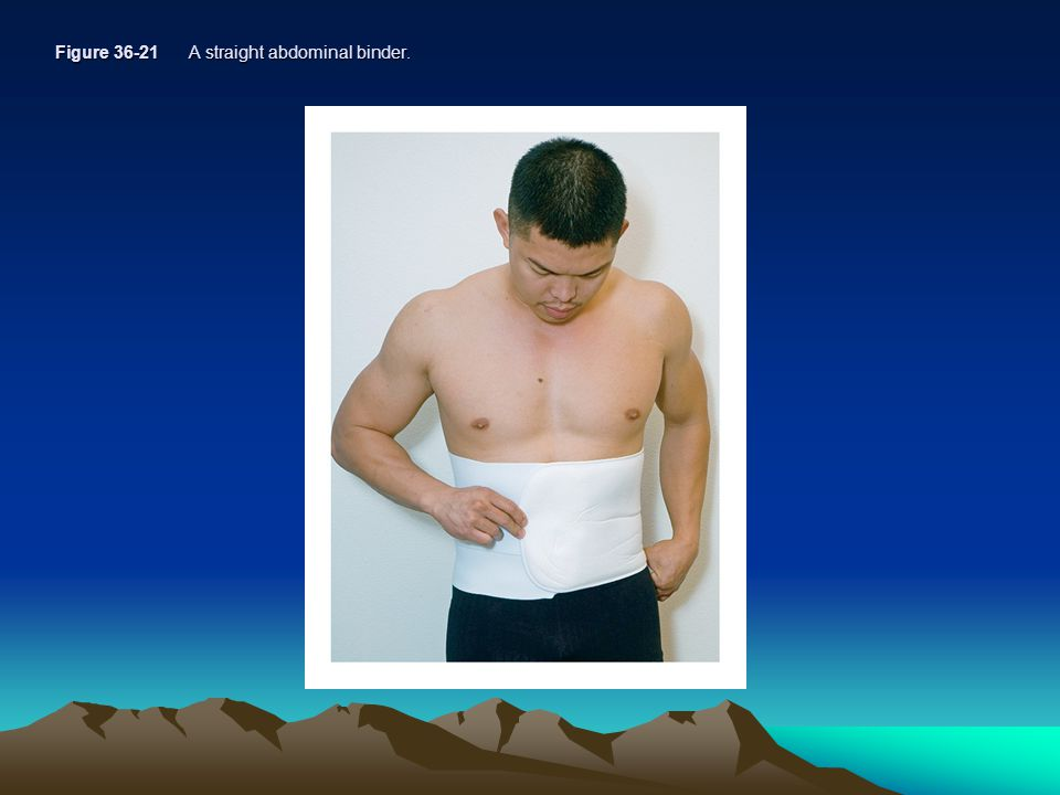 Figure 36-21 A straight abdominal binder.