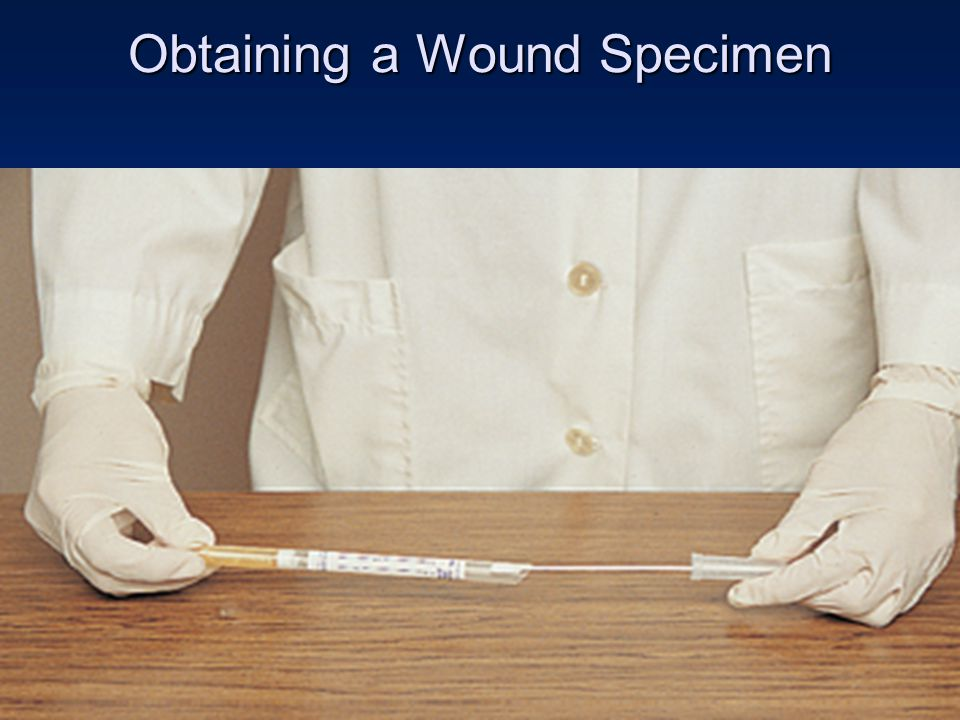 Obtaining a Wound Specimen