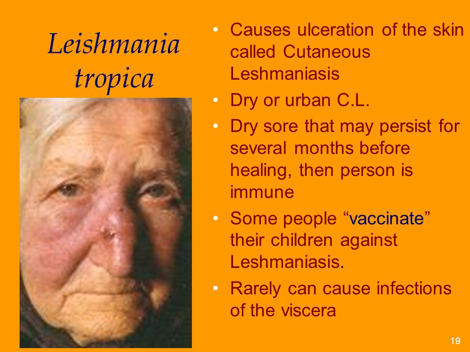 Causes ulceration of the skin called Cutaneous Leshmaniasis