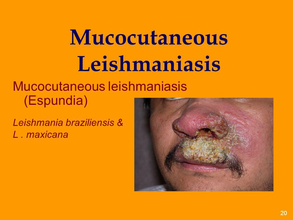 Mucocutaneous Leishmaniasis