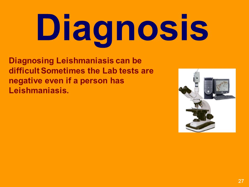 Diagnosis Diagnosing Leishmaniasis can be difficult Sometimes the Lab tests are negative even if a person has Leishmaniasis.