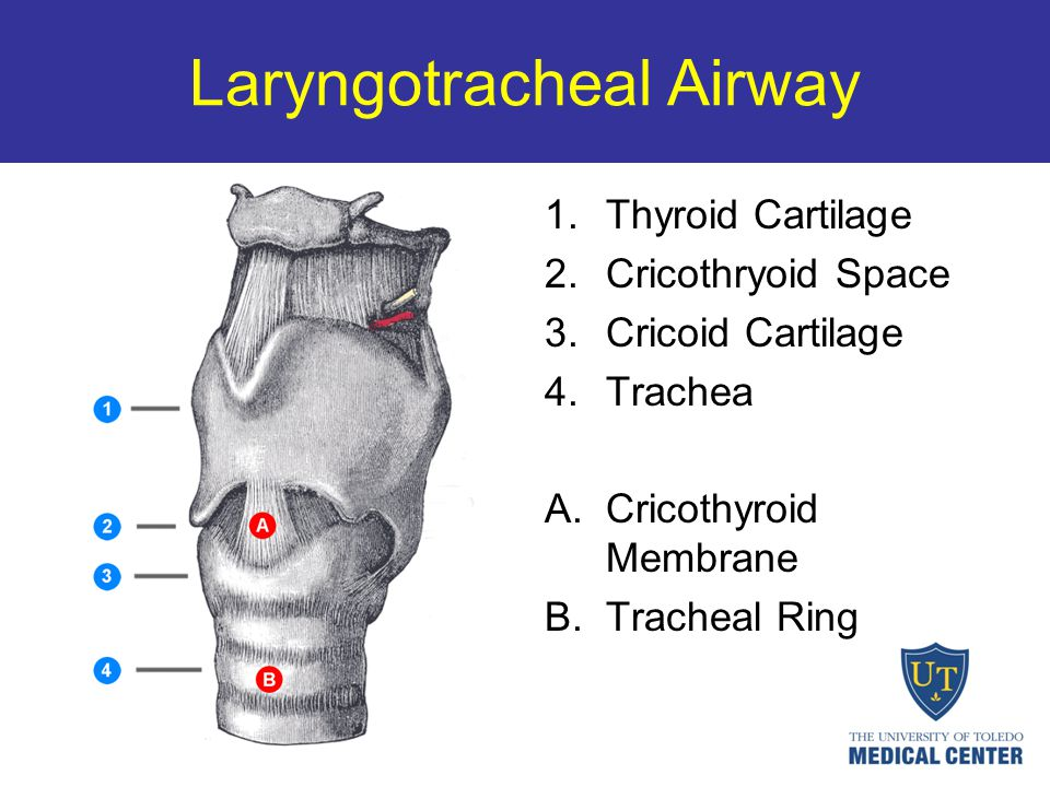 Laryngotracheal Airway