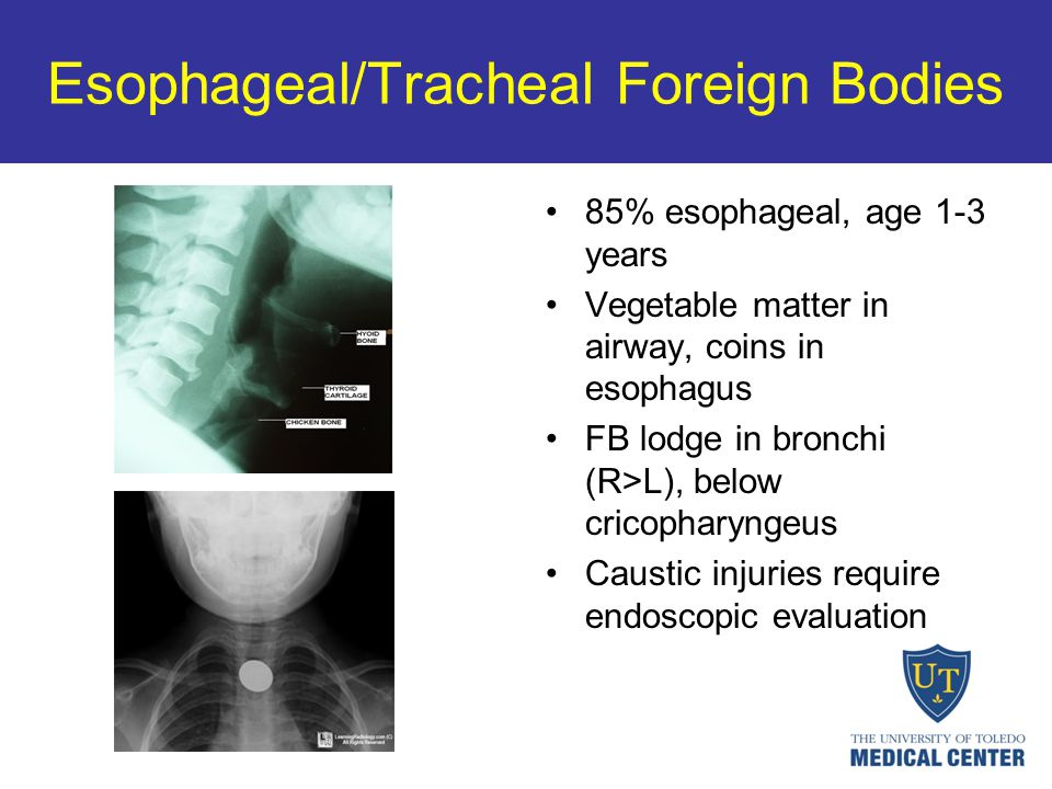 Esophageal/Tracheal Foreign Bodies