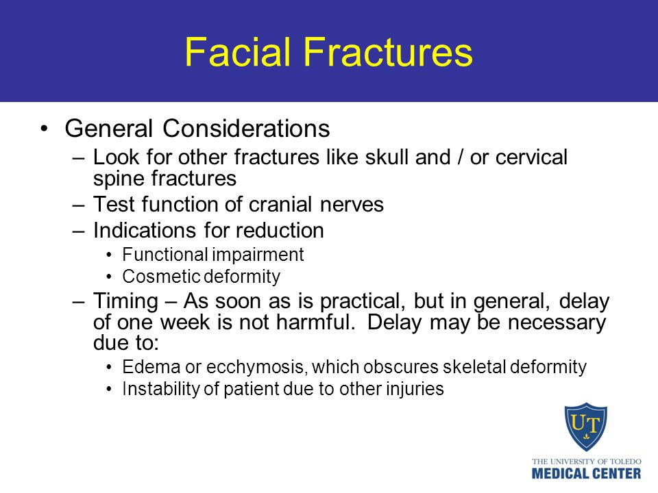 Facial Fractures General Considerations