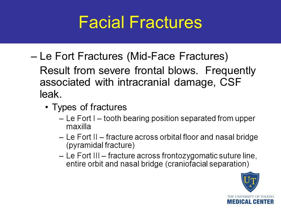 Facial Fractures Le Fort Fractures (Mid-Face Fractures)
