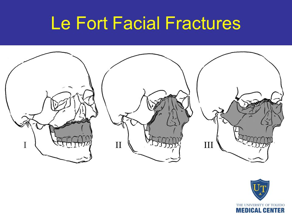 Le Fort Facial Fractures