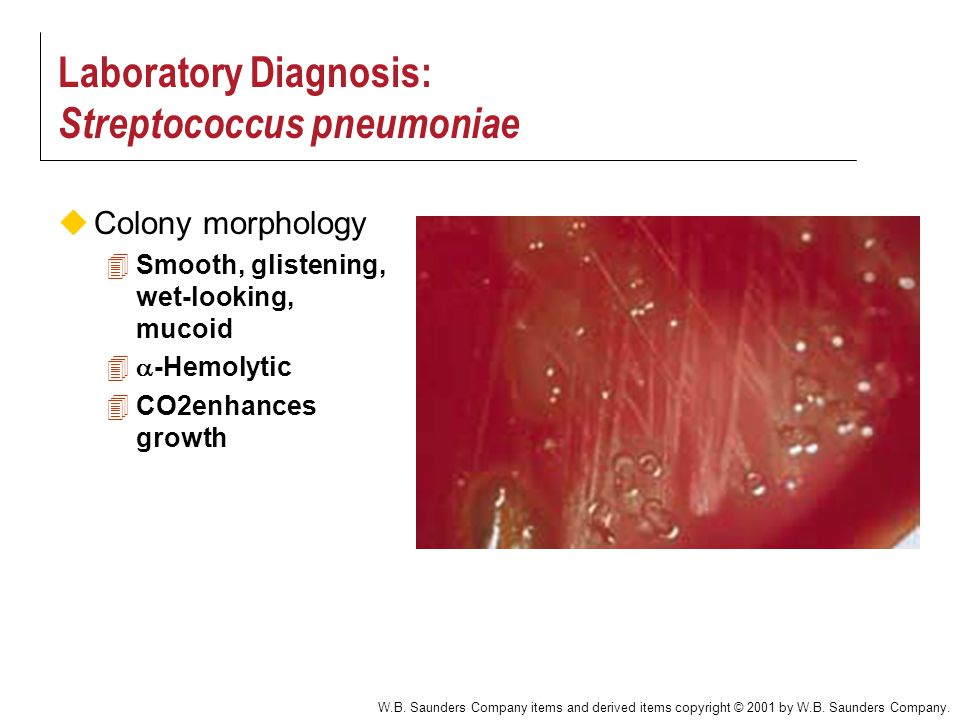Laboratory Diagnosis: Streptococcus pneumoniae