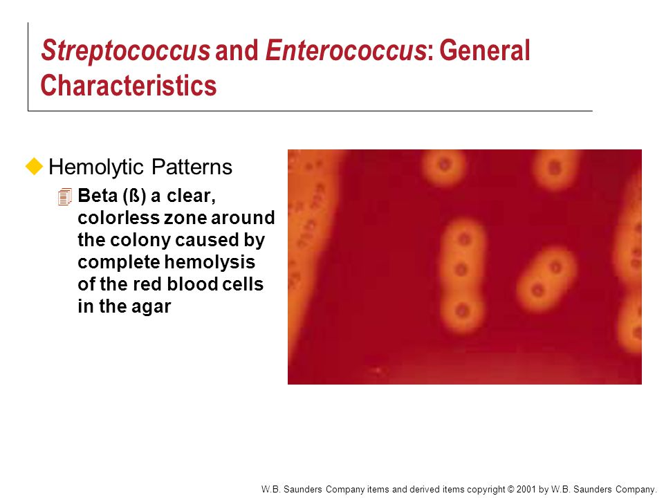 Streptococcus and Enterococcus: General Characteristics