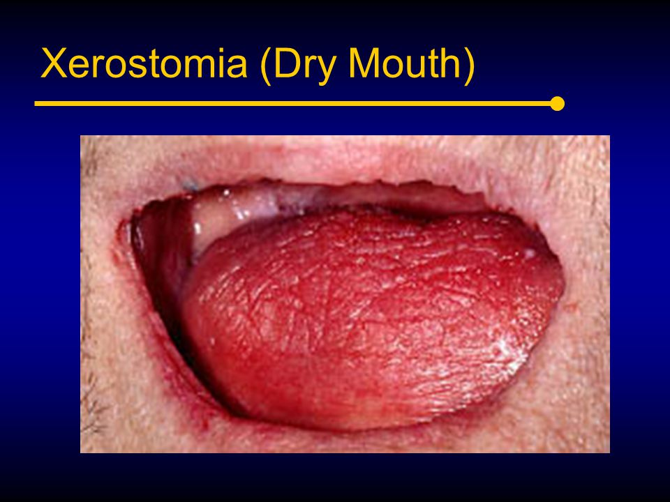 Xerostomia (Dry Mouth)