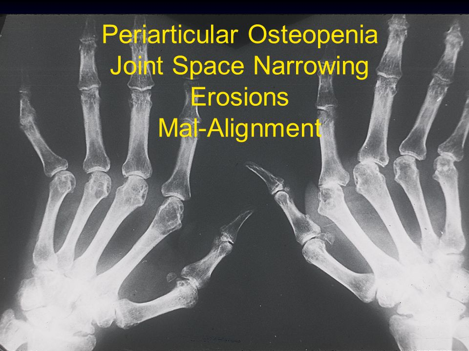 Periarticular Osteopenia Joint Space Narrowing Erosions Mal-Alignment