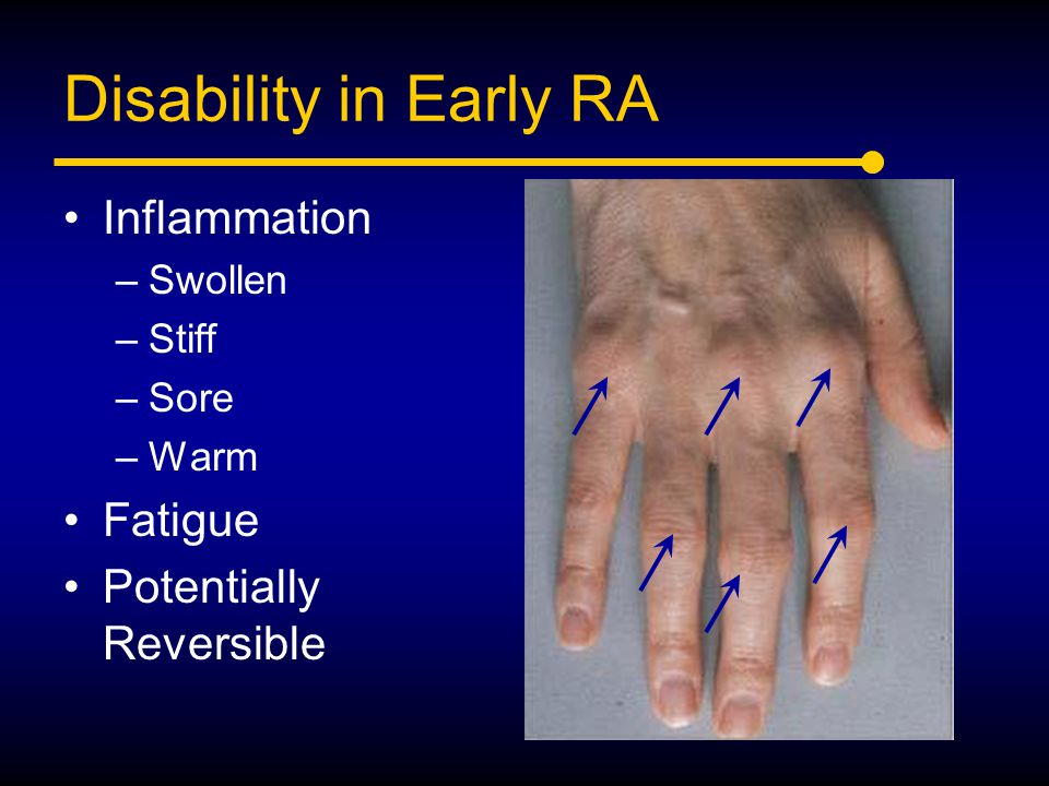 Disability in Early RA Inflammation Fatigue Potentially Reversible