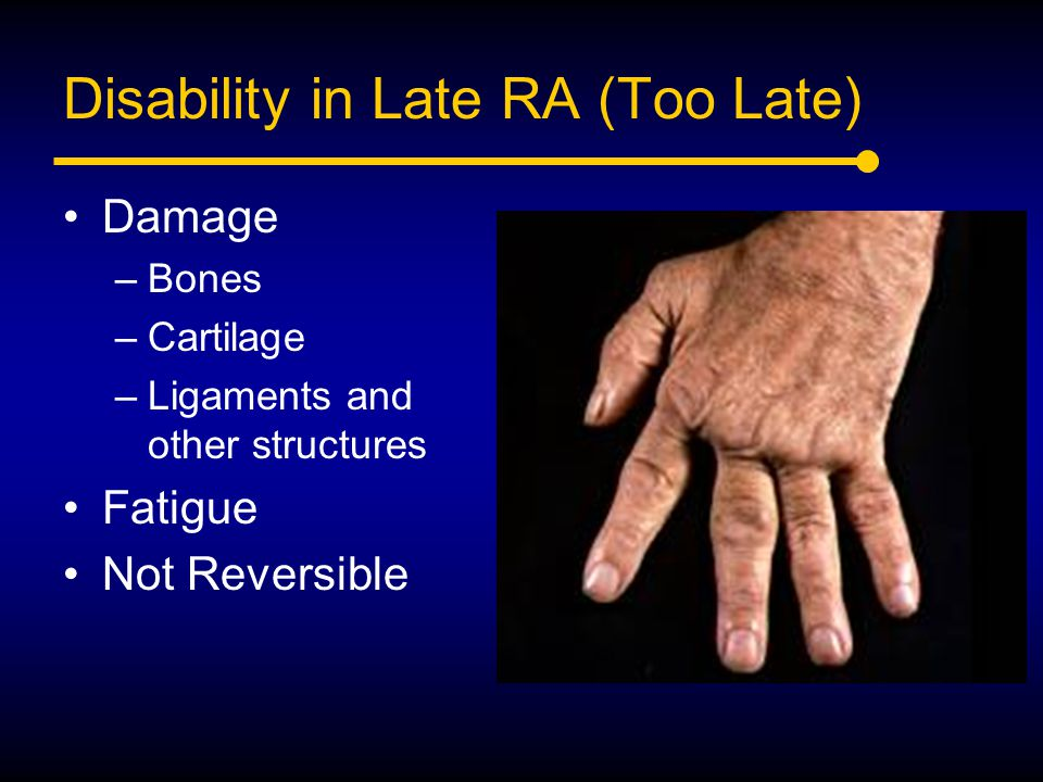 Disability in Late RA (Too Late)
